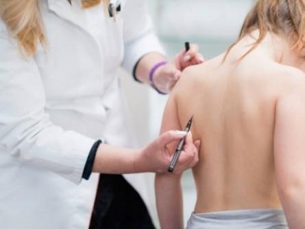 В Україні– епідемія сколіозу