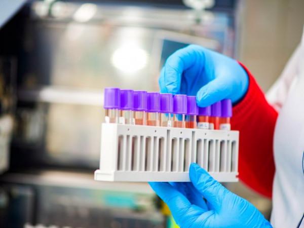 На Маневиччині протягом п'яти днів виявили 20 нових інфікувань коронавірусом