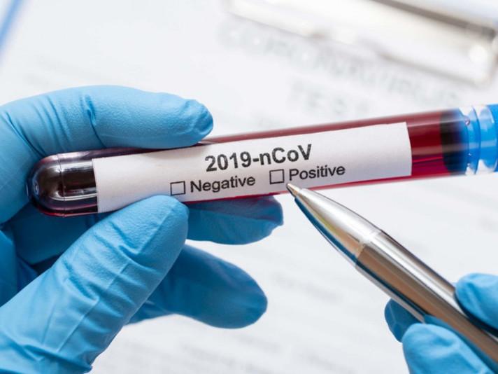 У Маневицькому районі виявили три нових хворих на коронавірус
