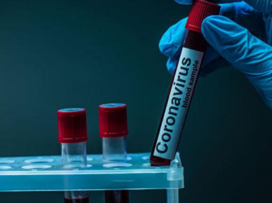 На Маневиччині – один новий випадок коронавірусу