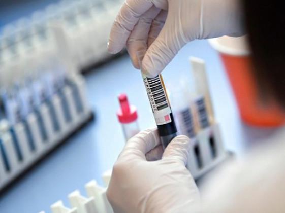 На Маневиччині виявили 4 нових випадки інфікування коронавірусом