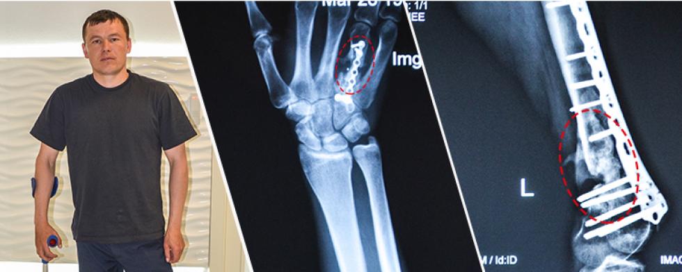 Рентгенівський знімок травми Маневичанина