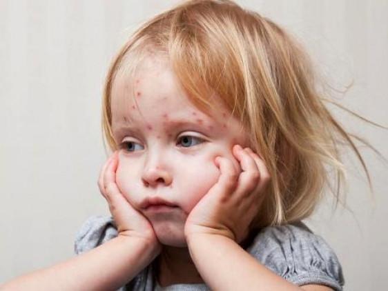 На Маневиччині зафіксували шість випадків захворювання на кір